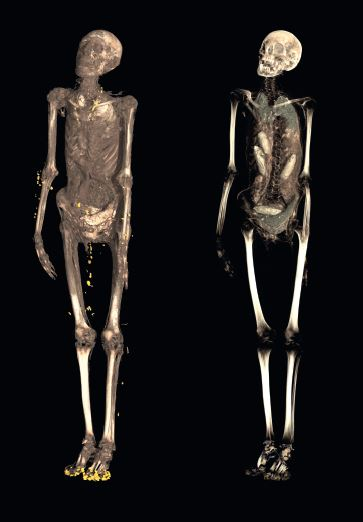 Scans of a mummy from the Roman period. From Ancient Lives new discoveries p. 139. Courtesy of the British Museum.